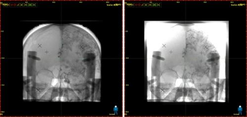 Mejora del contraste obtenida en la imagen de un cráneo mediante la nueva tecnología (izquierda) frente a imagen convencional (derecha)./ CSIC